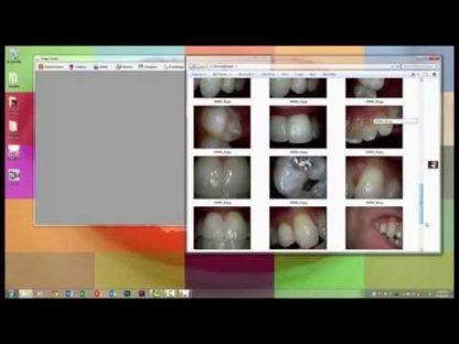 ALPTA MD960U Dental Intraoral Camera - Super Clear High Quality-50
